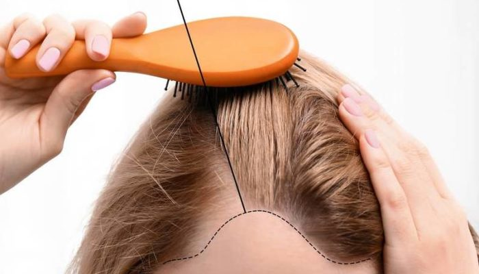 chute de cheveux