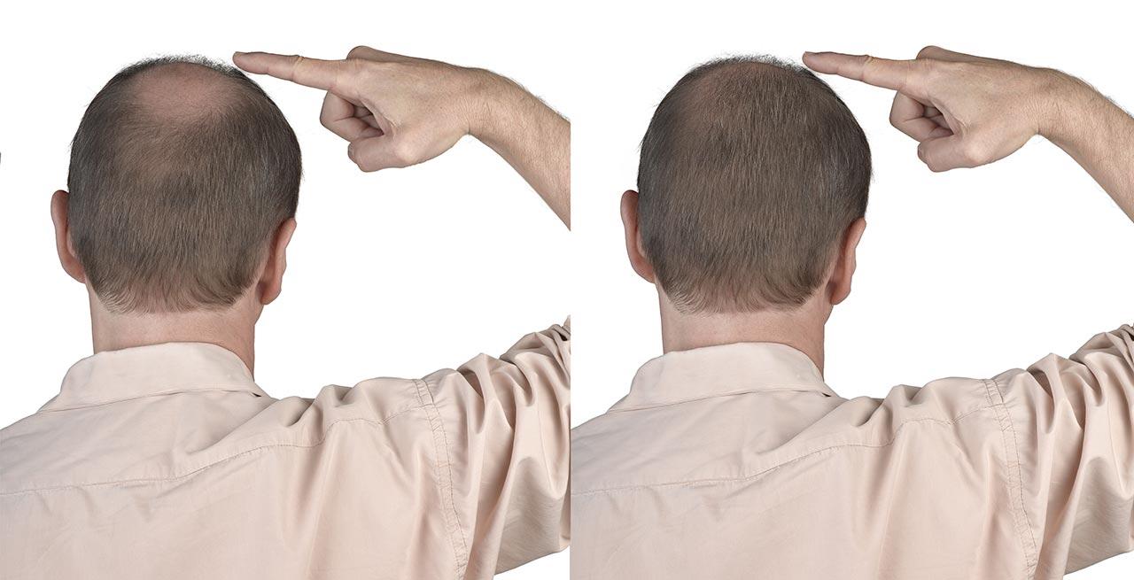 Hair Transplant France